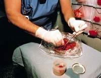 Eine Pavian-Leber, die einem Menschen transplantiert werden soll, wird für die Operation vorbereitet.