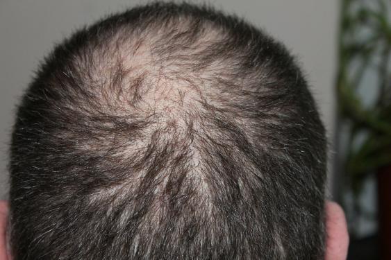 Kreisrunder Haarausfall am Hinterkopf