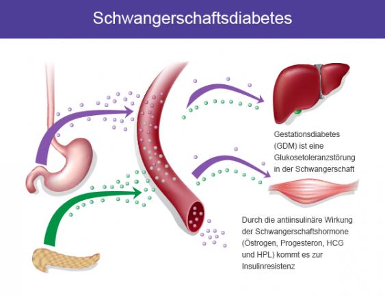 Schema Schwangerschaftsdiabetes