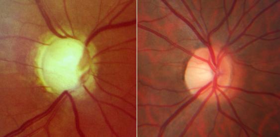 Sehnervenköpfe mit und ohne Glaukombefund