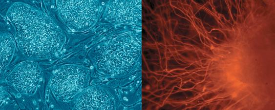 Embryonale Stammzellen (l.) und Nervenzelle (r.)