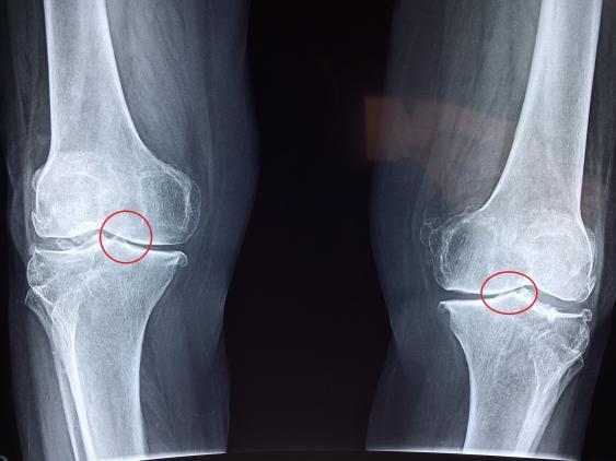 Röntgenbild eines Kniegelenkpaares