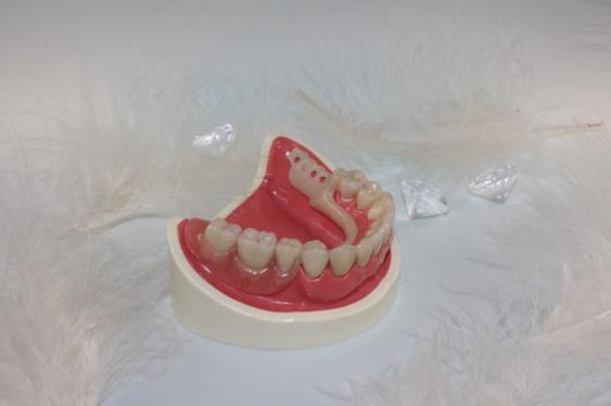 Zahnersatz, Unterkiefer