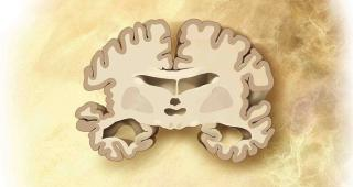Schematischer Schnitt durch Gehirn eines Alzheimer-Patienten