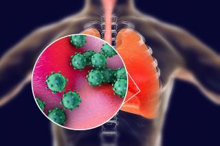 Coronaviren vor transparentem Körper mit farblich hervorgehobener Lunge