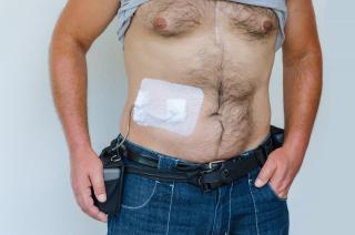 Kunstherzpatient mit extener Kontrolleinheit und Kabel zum Herzen
