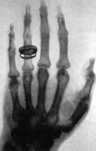 Albert von Köllikers Hand im Röntgenbild, 1896