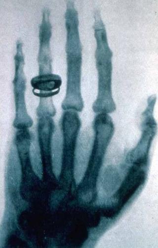 Historisches Röntgenbild einer Hand von Conrad Röntgen (1896)