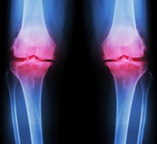 Schmerzende Kniegelenke