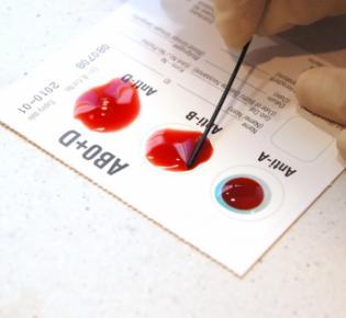 Diagnose-Kits zur Bestimmung der Blutgruppe innerhalb des AB0 und Rhesus-D- Systems