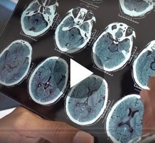 Bildschirm mit Hirnscan-Darstellungen
