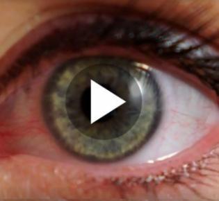 Auge in Nahansicht