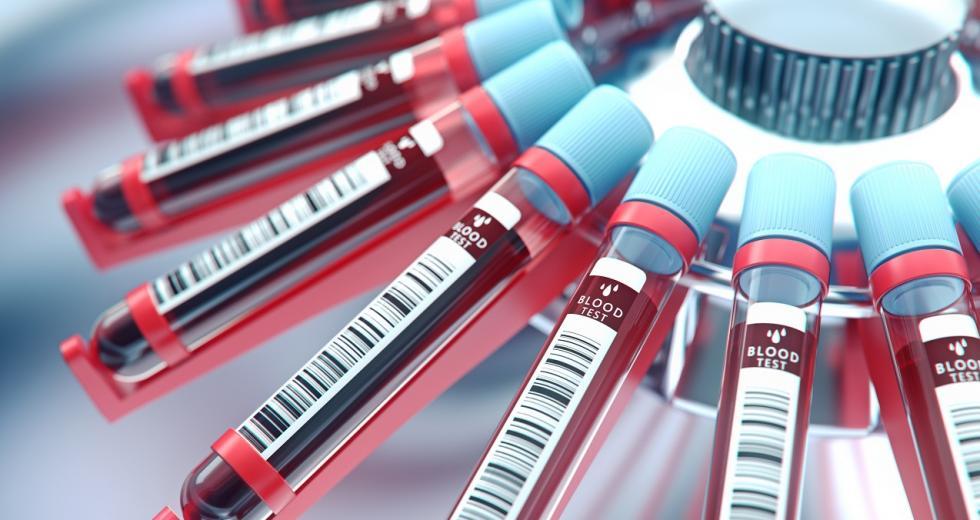 Blutproben in einer Zentrifuge