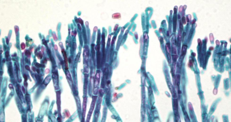 Konidienträger und Konodien des Penicillins