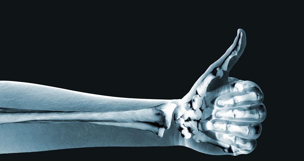 Pseudoröntgenbild eines menschlichen Unterarmes