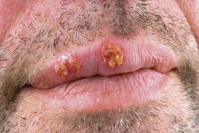 Lippenherpes kann durch Stress, Ekel oder ein schwaches Immunsystem ausgelöst werden.