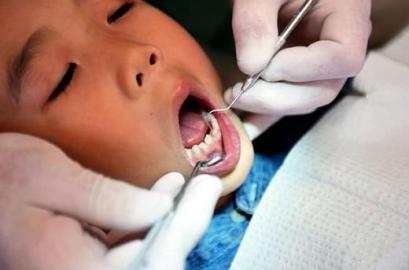 Zahnarzt, Kind, Mund