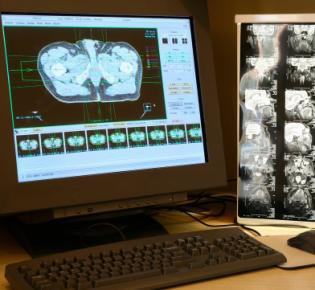 Computer Tomographie