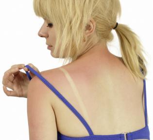 Mädchen mit Sonnenbrand