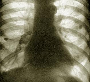 Lungentuberkulose im Röntgenbild
